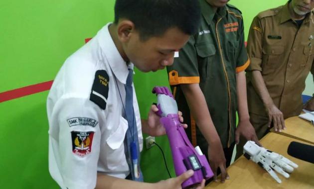 Kreatif, Siswa SMK Membuat Tangan Robot Murah Khusus Disabilitas